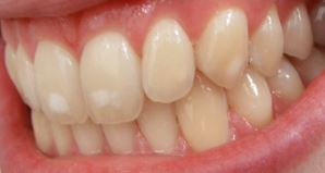 Fluorosis markings