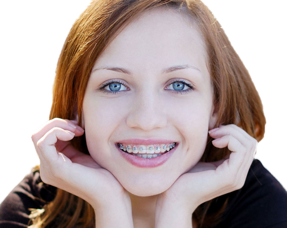 Braces-at-Kids-Dental.jpg
