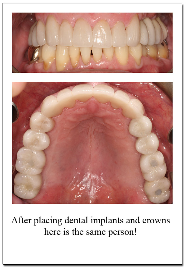 After Dr Rosenblat Reconstructed the teeth. theoakvilledentist.com