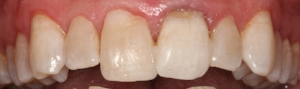 Reattached broken tooth by Dr Rosenblat