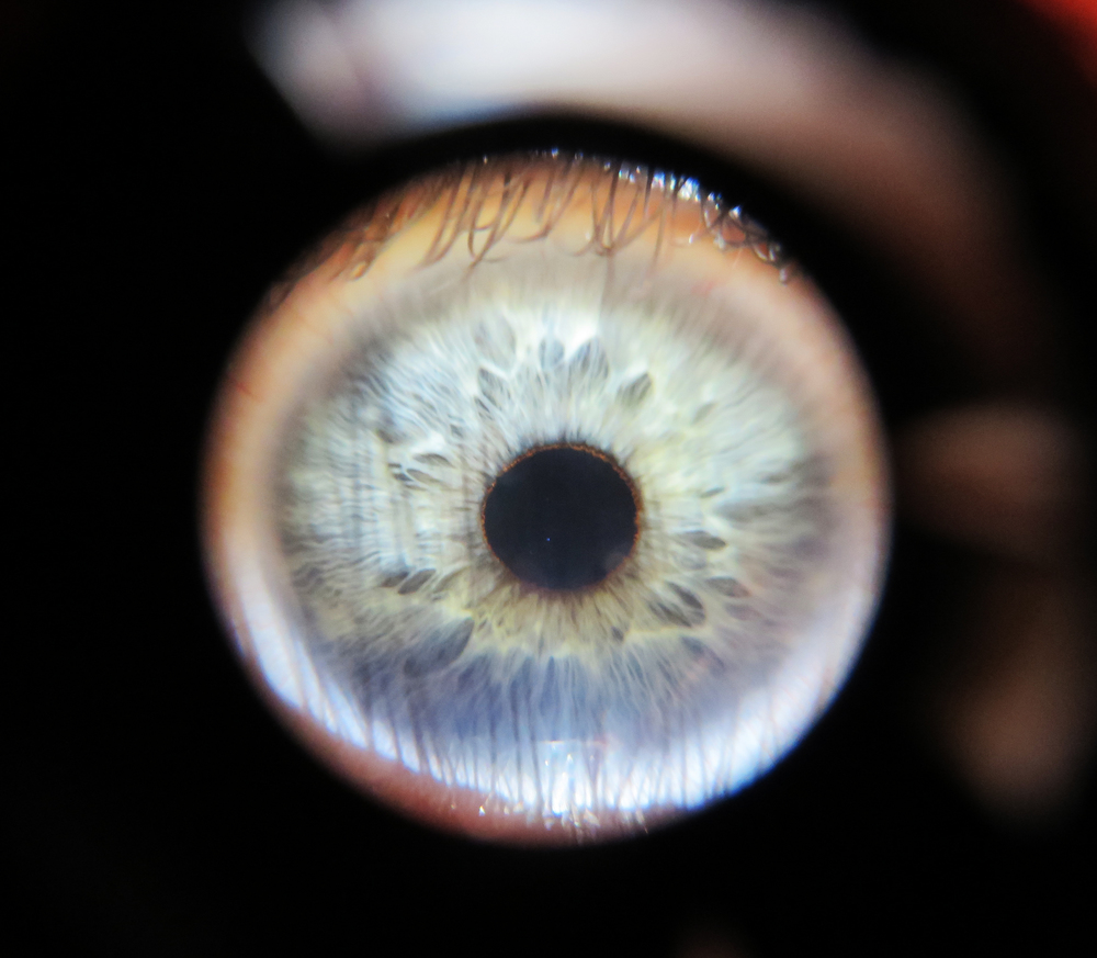 My Eye through a macro lens