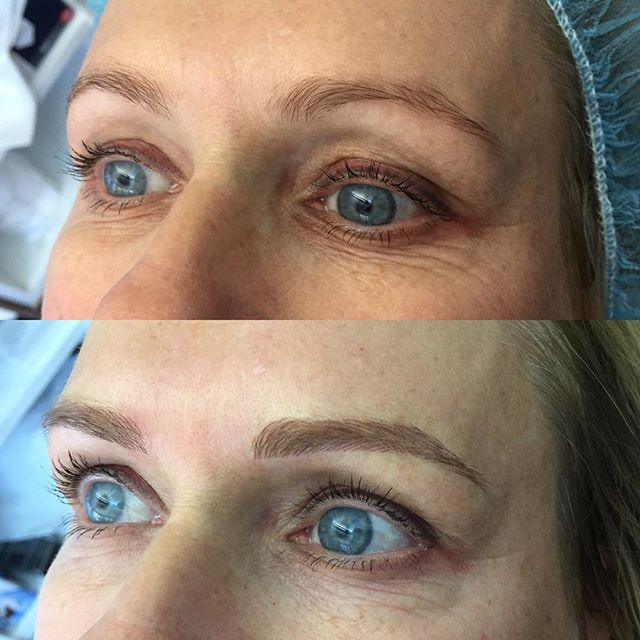 More definition and balance for this lovely lady #microblading #microbladingeyebrows #onbrowhouse #eyebrowtattoo #eyebrowsonfleek #eyebrowmicroblading #browspecialist #browfeathering