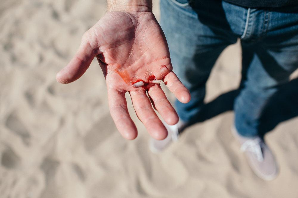 Santa Monica Muscle Beach Fail