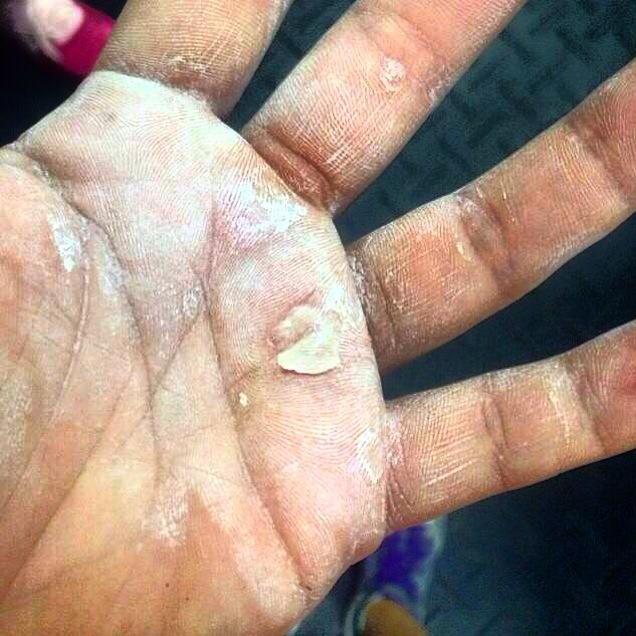 Rough Calluses Turn Into Torn Hands