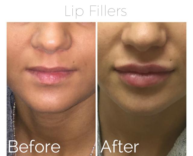 Filler - lips 2.png