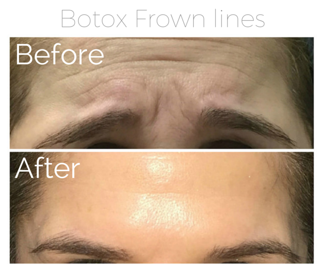 Botox - Frown lines 2.png
