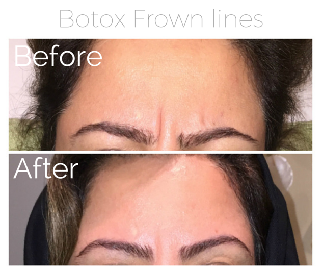 Botox - Frown lines.png