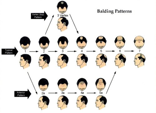 Male - hair loss pattern.jpg