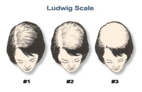 Female-Hair-Loss-101-Ludwig-image.jpg