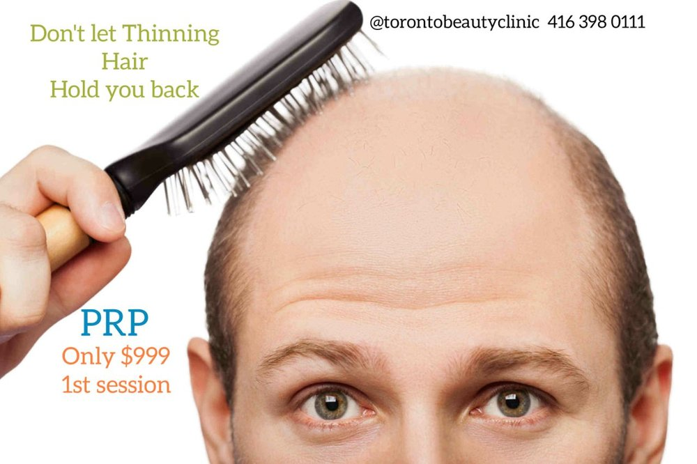 PRP For Hair Restoration.jpg