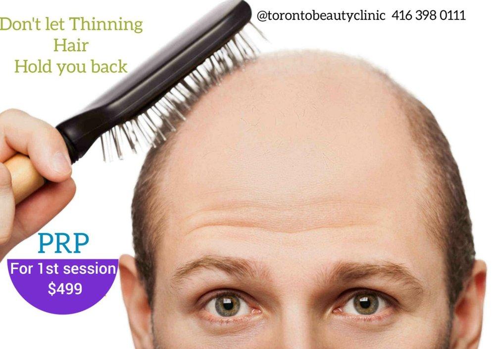 50% OFF PRP$499 ONLY* - @TorontoBeautyClinic 416(398) 0111