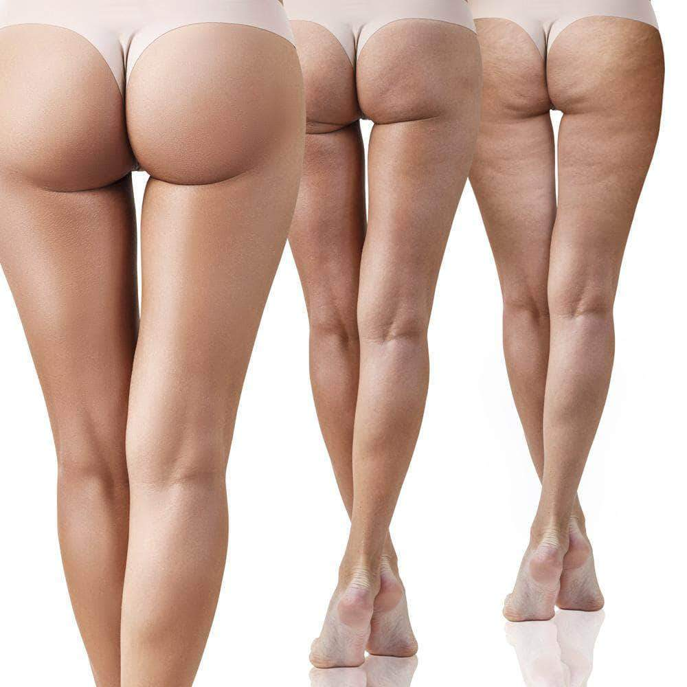 Carboxy Therapy Cellulite.jpg