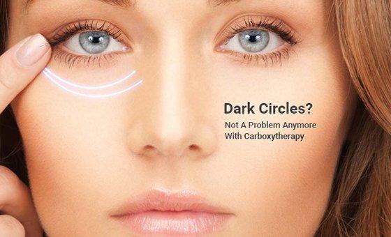 Undereye-carboxytherapy.jpg