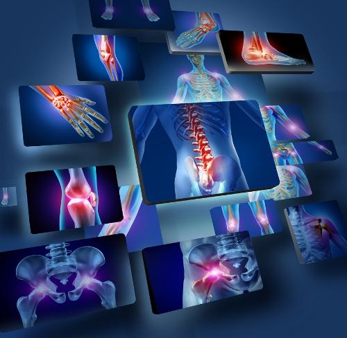 bigstock-Human-Joints-Concept-41724967.jpg