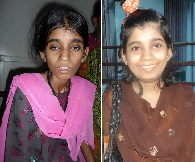 This picture shows the same tuberculosis patient at the time of her diagnosis (left side) and at the time of discharge. Photo:St. Thomas Home CC BY