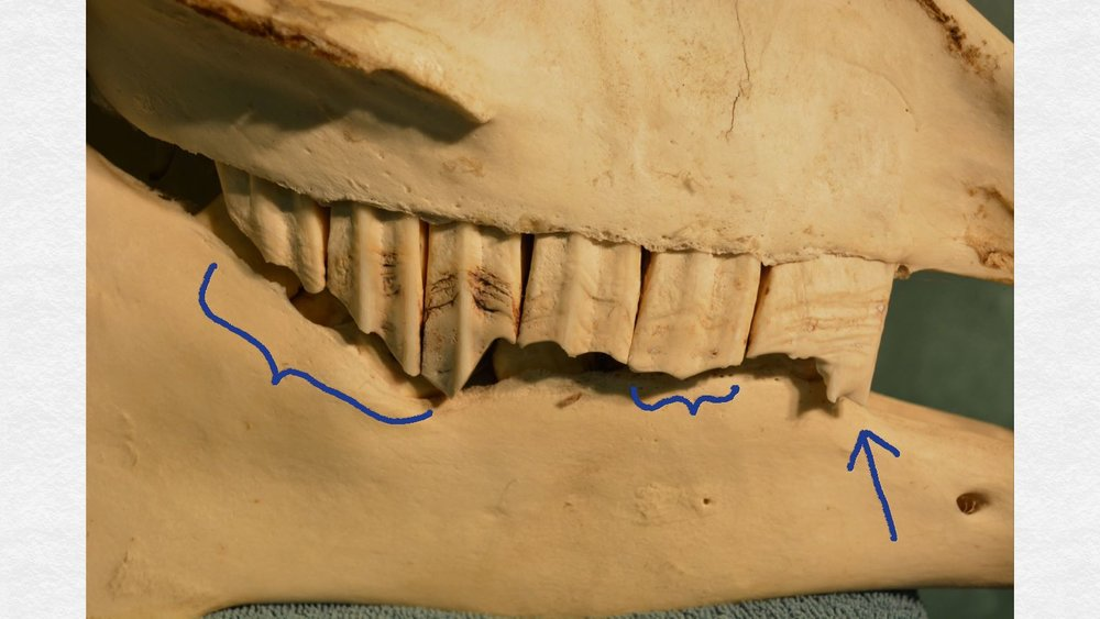 "The affected side.  The back three teeth (left of the image, long blue bracket) are sloping toward the wedge-shaped overgrowth.  The second cheek tooth (short blue bracket) is a little too long, and there is a prominent ""hook"" at the front of the first cheek tooth (blue arrow).  The wedge-like overgrowth of the fourth cheek tooth ""locked"" the upper jaw a little forward of its normal position, so there was nothing to grind against the front of the first cheek tooth, hence the development of the ""hook."""