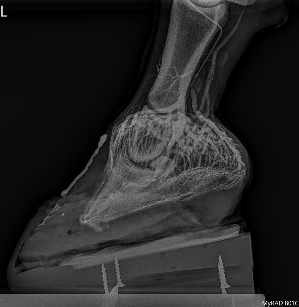 The above image is a venogram taken of a horse with acute laminitis after placement of a modified ultimate shoe system.
