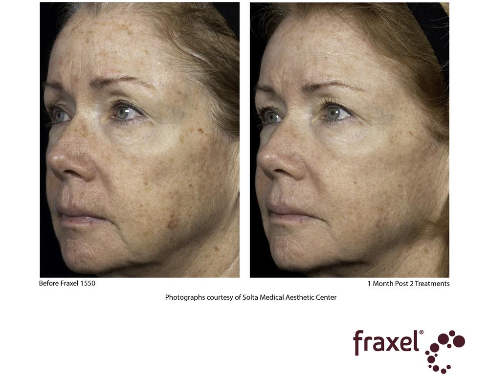 Fraxel face.jpg