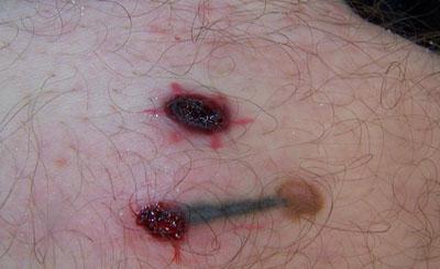 Dermatech permanent cosmetics wenatchee wa for Red bumps on my tattoo