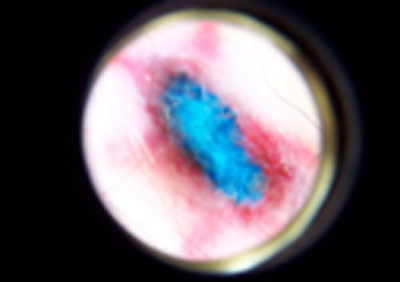 5) Bump #1 Magnified, more blue surfaced. During the healing process, the blue pigment continued to exfoliate.