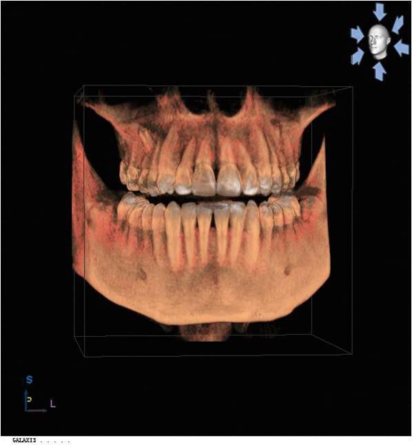Sirona_Roentgen_ORTHOPHOS_XG_3D_Aufnahme_3D_Volumen.jpg