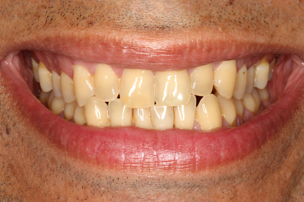 yellowed teeth
