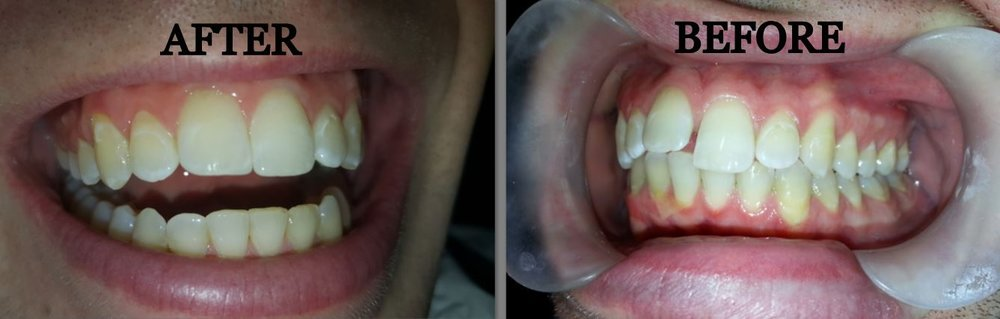 After and Before Teeth Results