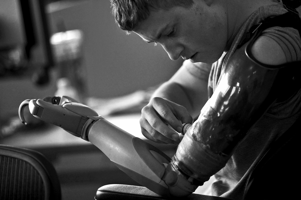 Army Pfc. Kevin Trimble, 19, adjusts his myoelectric upper limb prosthetic for occupational therapy at the Center for the Intrepid at Brooke Army Medical Center in San Antonio.  © Lisa Krantz/San Antonio Express-News/ZUMA Press
