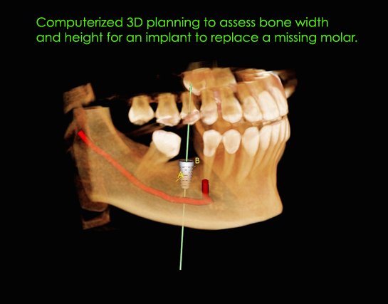 alexnguyendds-implantplanning-version-4.jpg