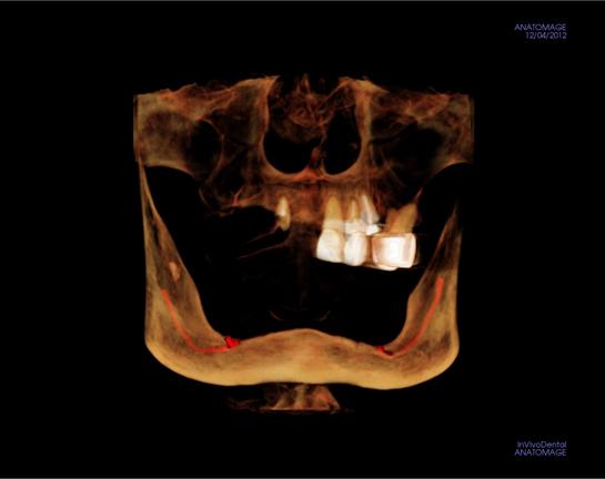 alex-nguyen-dds-deficient-bone-implantview.jpg