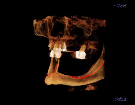 alex-nguyen-dds-deficient-bone-implantview2_3.jpg