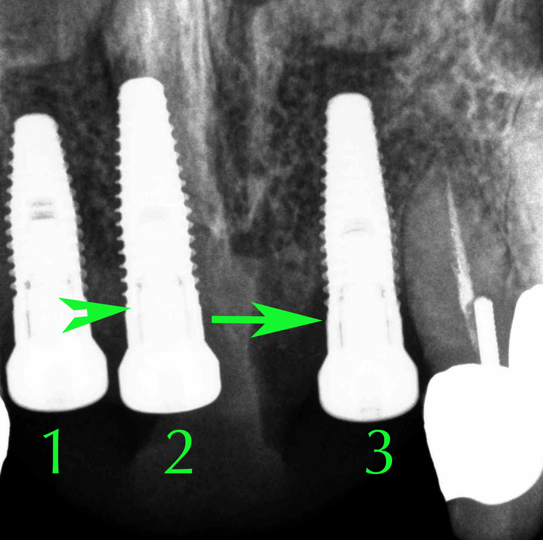 Blog.AlexNguyenDDS.Implant Xray 2. R17 copy