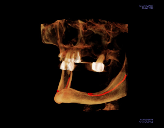 Alex Nguyen DDS.  Deficient Bone. ImplantView(2)_3