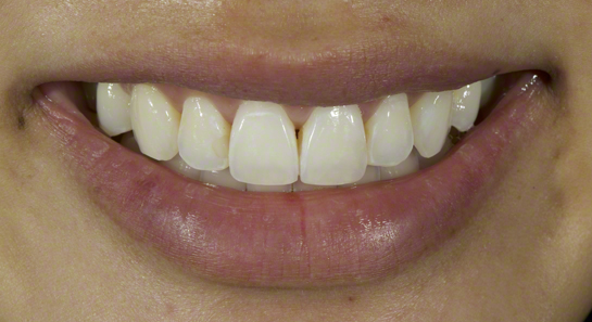 Fractured Front Tooth After Bonding