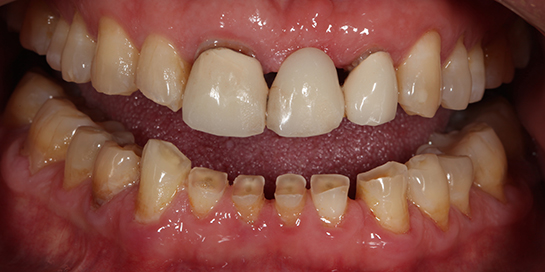 Anterior Teeth Wear 2