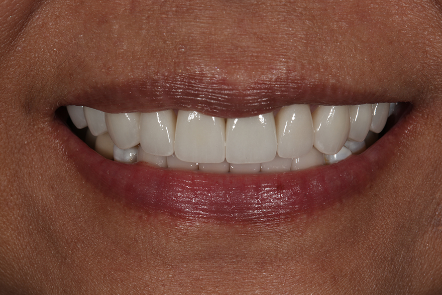 alexnguyendds-smilerejuventaion-after