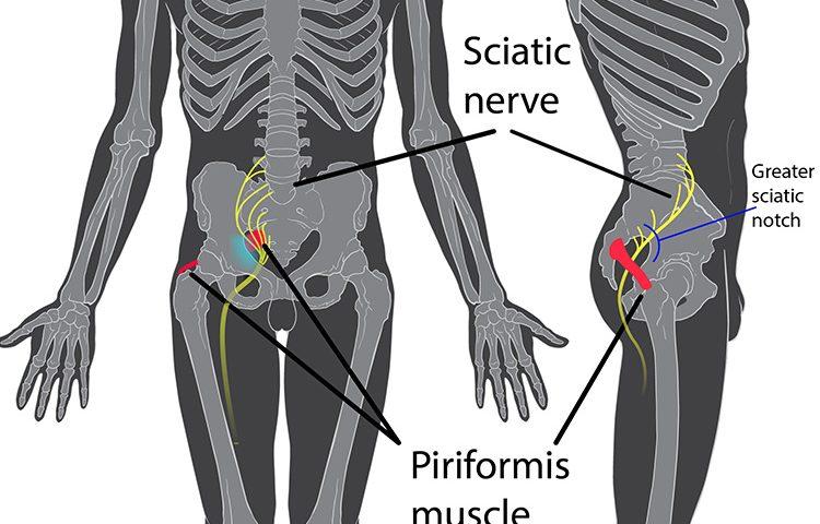 montreal-Sciatic-Nerve-treatment-750x480.jpg