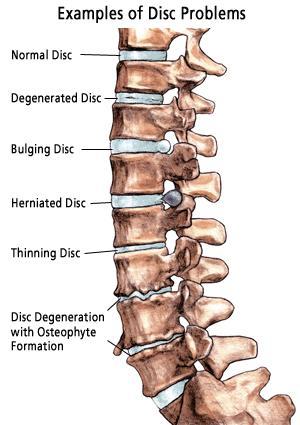 spine-disc-problems.jpg