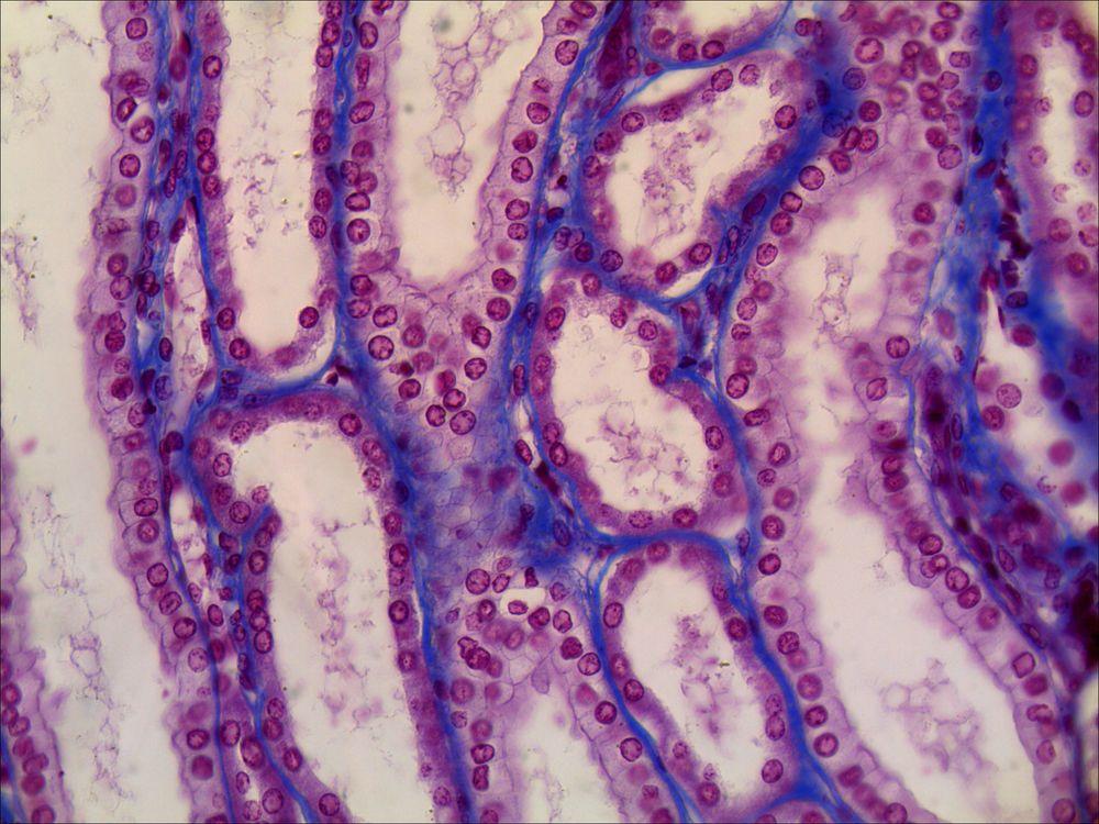 Kidney Slide