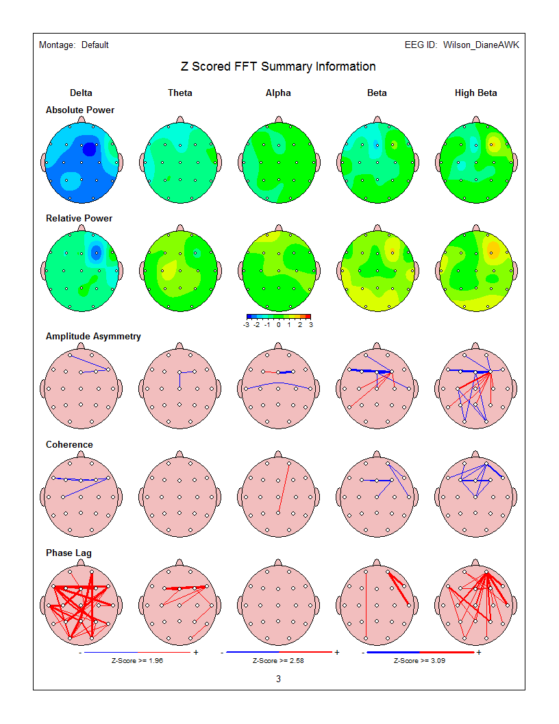 Sample QEEG Brain Map