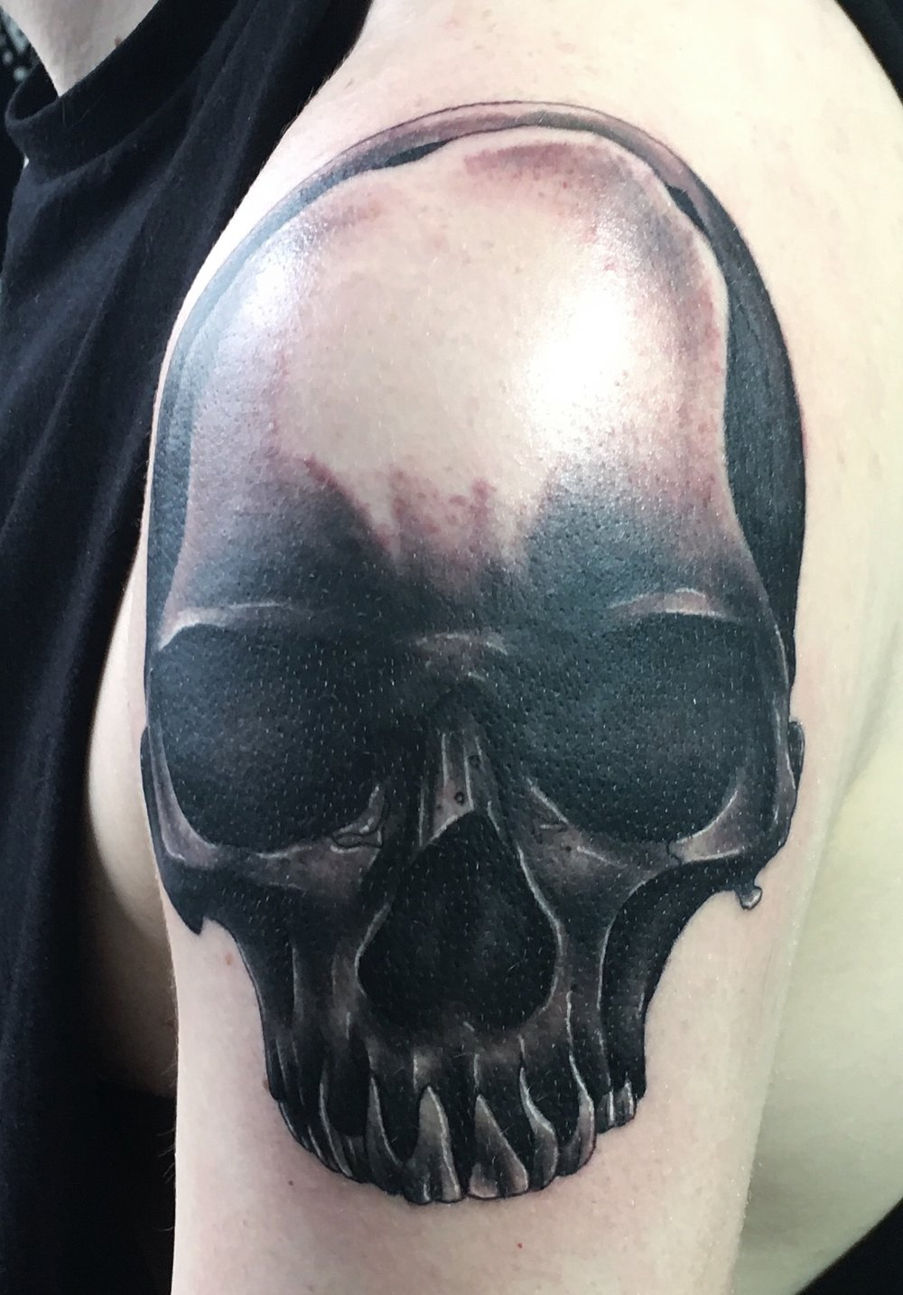 black and grey skull no jaw by mel hanson