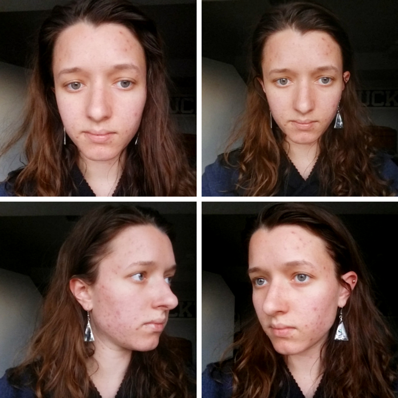 April 1, 2015: I am wearing absolutely NO makeup. You can see my jawline, cheeks, temples, and around my lips are broken out. Most of the spots you see are actually pimples/bumps.