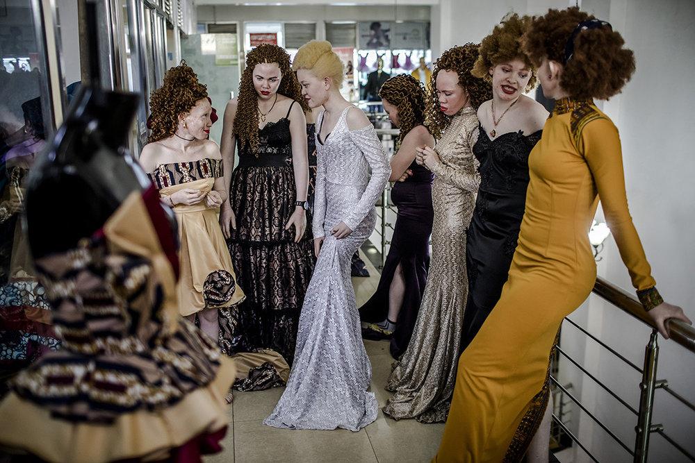AlbinismBeautyEastAfricaAlJazeeraLuisTato_011.jpg