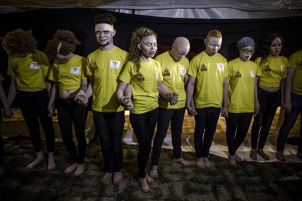 AlbinismBeautyEastAfricaAlJazeeraLuisTato_027.jpg