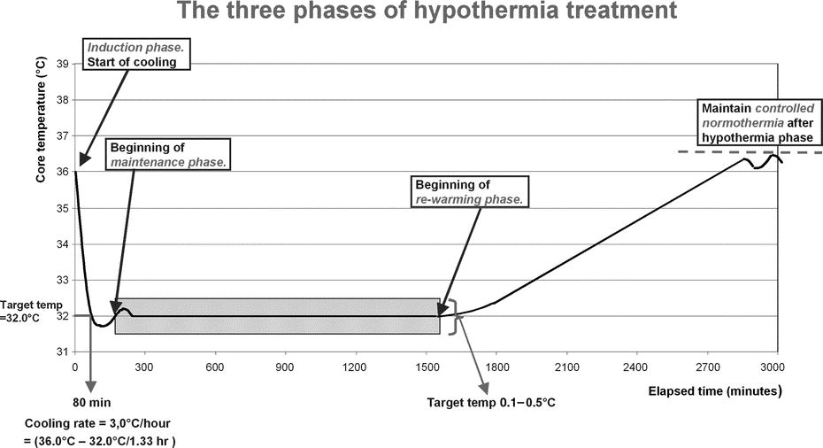 Figure 3 from the Polderman review Crit Care Med, 2009, on therapeutic hypothermia (NB: not the protocol used in this RCT)