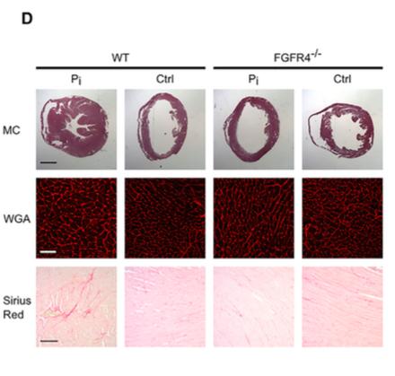 Figure 5D Grabner et al  Cell Metabolism  2015