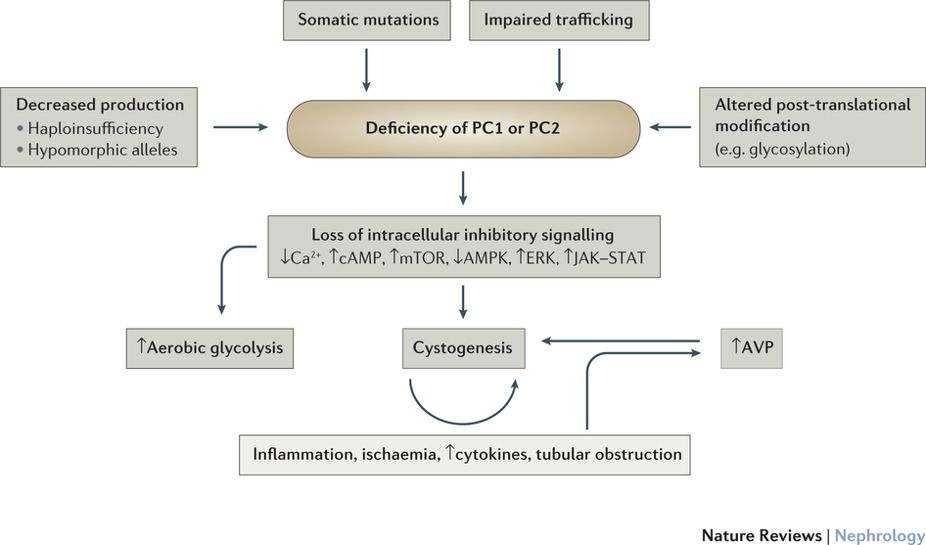 Pathophysiology of ADPKD. From Lanktree and Chapman,    Nature Revs Nephrology 2017