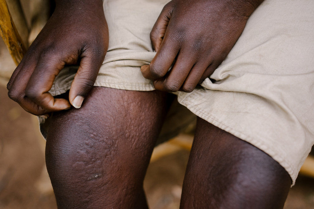 Consolata's rash. She has very little to occupy her time now that she cannot go to school, and her parents say she spends much of it sitting silently and constantly scratching her rash.