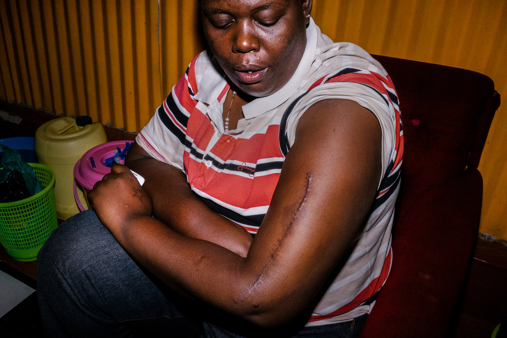 Cynthia displays a scar that winds down her arm, a result of the beating she received from Burundian authorities after they found out she was a lesbian.