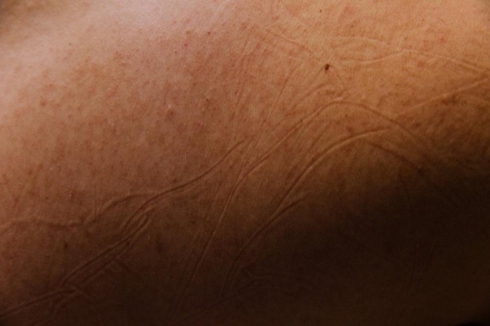 Untitled (Skin)